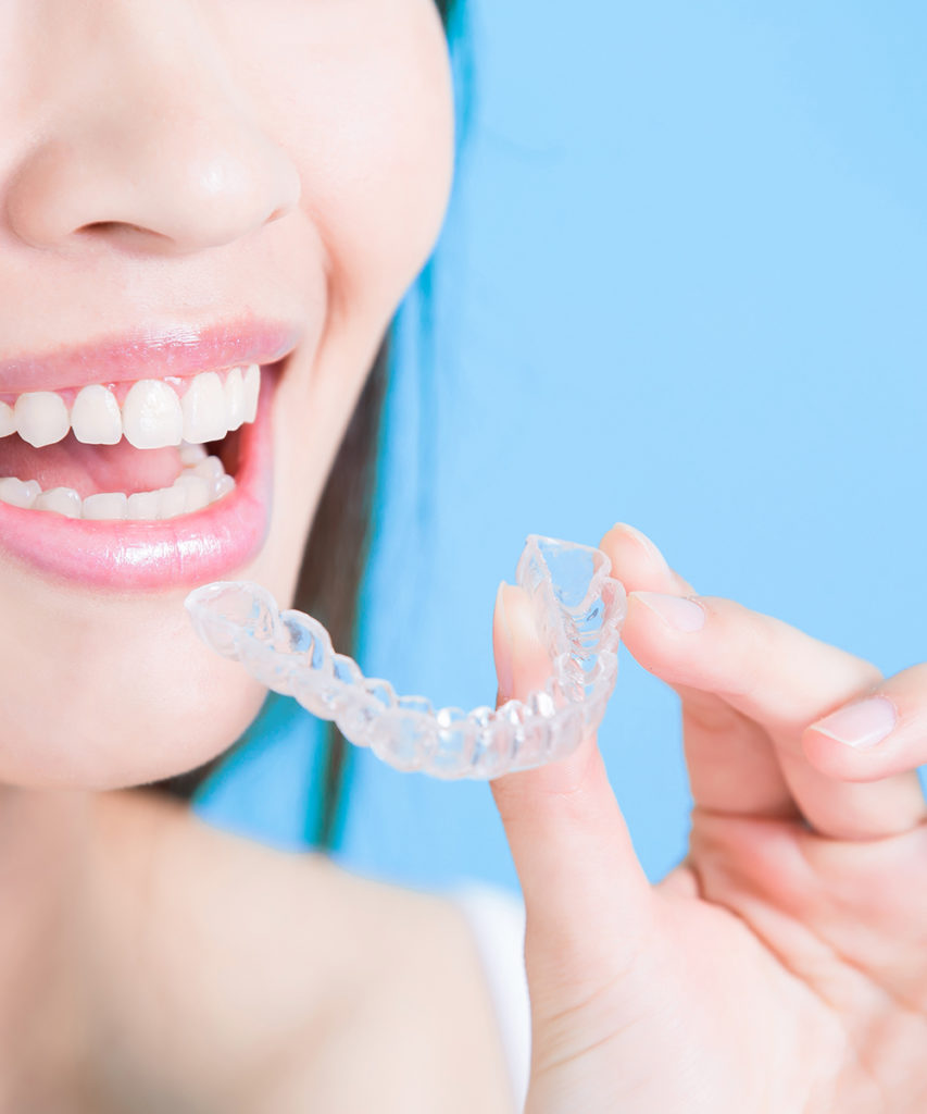 Invisalign Smile - Hi 5 Orthodontics